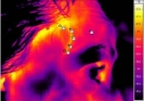 Thermography in health